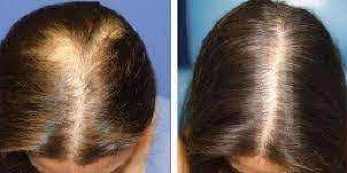 What Are Work For Hair Regrowth Formula?